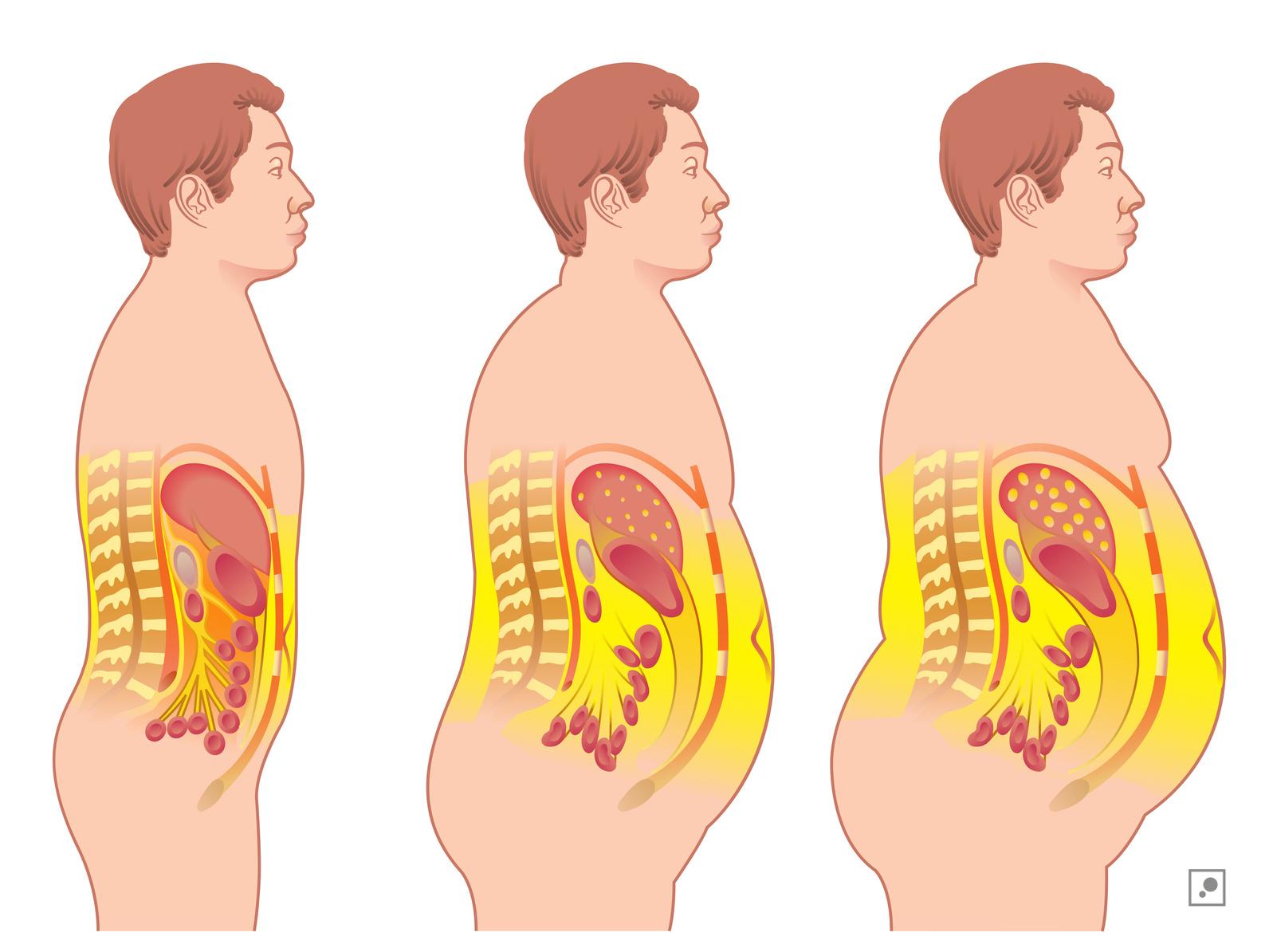 cum să ardeți grăsimea de organe interne