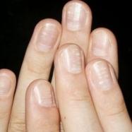 Ce inseamna cand ai PETE GALBENE pe unghii