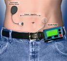 Pancreasul artificial care ar putea schimba viata bolnavilor de diabet
